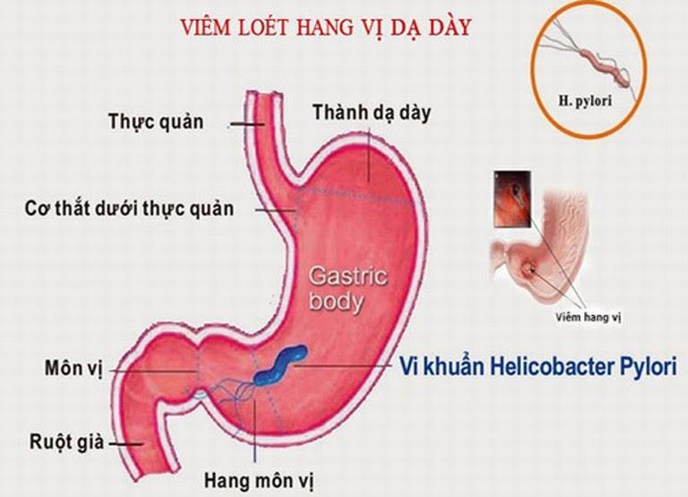 Vi khuẩn Hp là nguyên nhân chính gây bệnh viêm phù nề hang vị