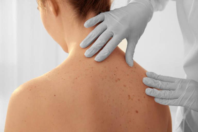 Nổi mề đay không ngứa có thể cảnh báo bệnh ung thư da rất nguy hiểm