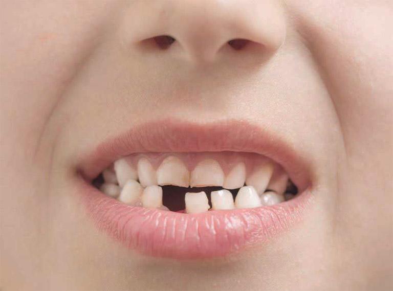 Mất răng là một trong số biến chứng nguy hiểm của tình trạng ê buốt răng, răng lung lay nếu không được tiến hành điều trị kịp thời