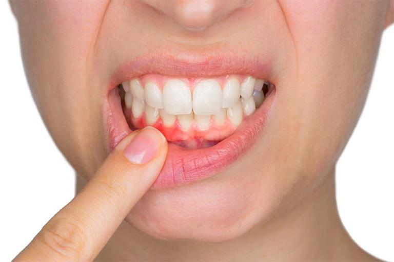 Viêm nướu cũng có thể là một trong những thủ phạm gây ra tình trạng răng bị ê buốt và lung lay