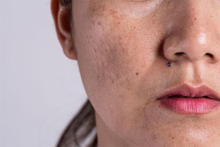 Những sản phẩm tế bào gốc trị nám da mặt được đánh giá cao