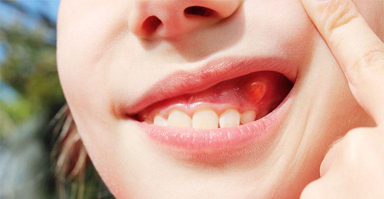 Kháng sinh chữa áp xe răng có khỏi không