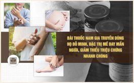 Bài thuốc gia truyền Đỗ Minh Đường là phương thuốc chữa nổi mề đay nổi tiếng và được nhiều chuyên gia đánh giá cao