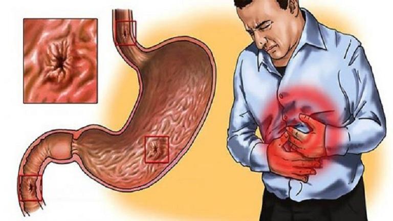 Viêm dạ dày cấp đe dọa cuộc sống con người