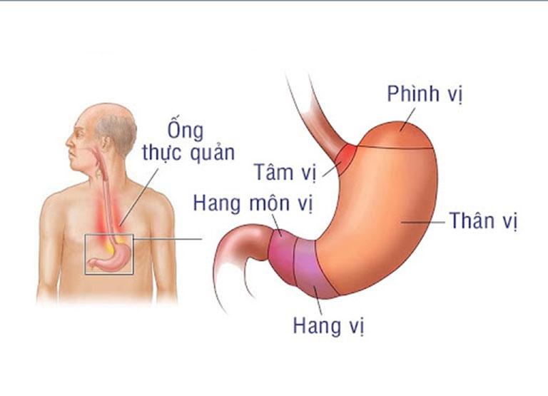 Hang vị dạ dày nằm ở đâu trong cơ thể?