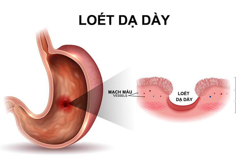 Loét dạ dày là biến chứng của viêm niêm mạc dạ dày