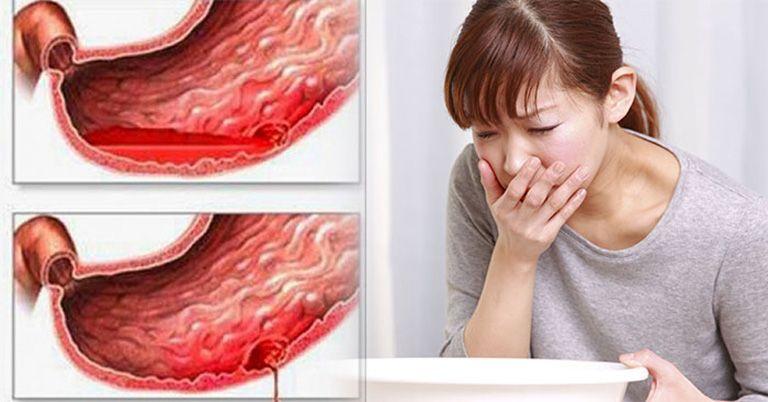 Viêm dạ dày có thể gây xuất huyết dạ dày