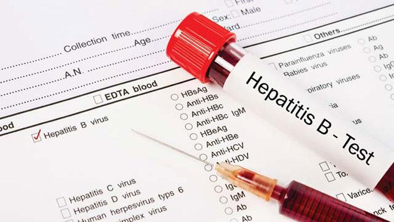 Bệnh viêm gan B có chữa khỏi được không