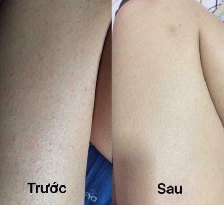 Hình ảnh bạn Huyền My trước và sau điều trị viêm nang lông