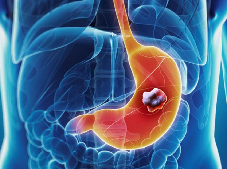 Ung thư dạ dày- biến chứng nguy hiểm của viêm dạ dày