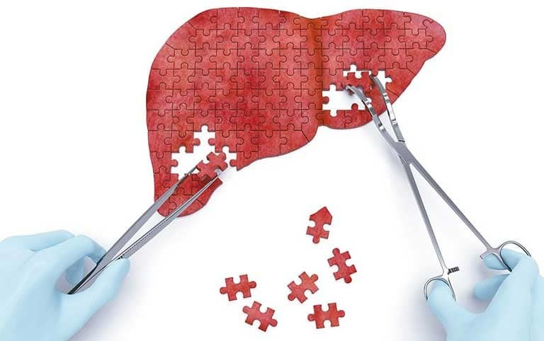 Đi xét nghiệm viêm gan B có cần nhịn ăn không?