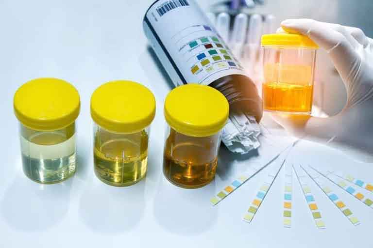 Xét nghiệm nước tiểu là phương pháp phổ biến, được áp dụng nhiều trong việc khám các bệnh phụ khoa