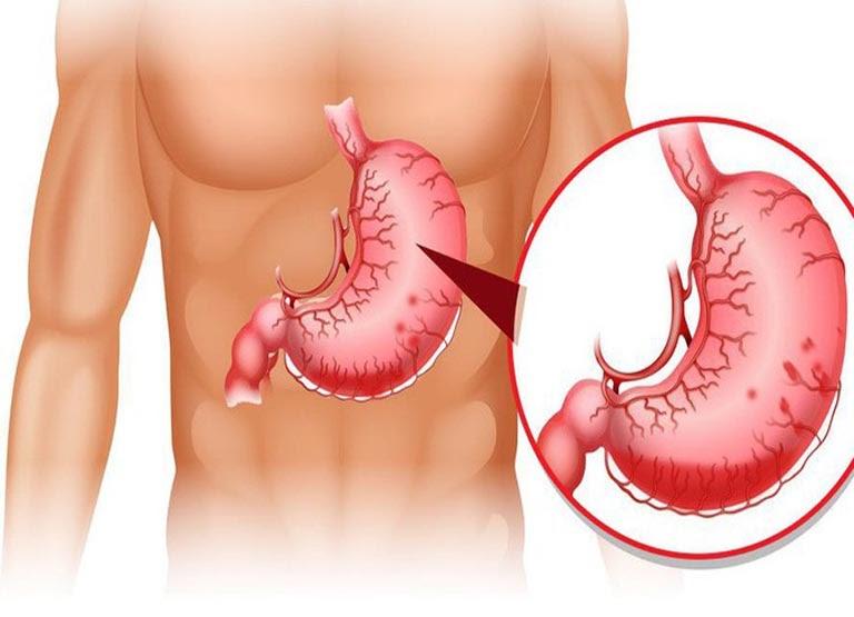 Xung huyết hang vị dạ dày tạo nên những tổn thương không nhỏ