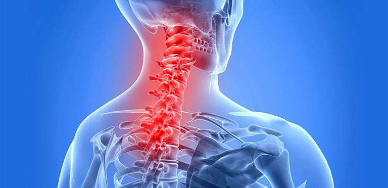 các bài tập cho người viêm cột sống dính khớp