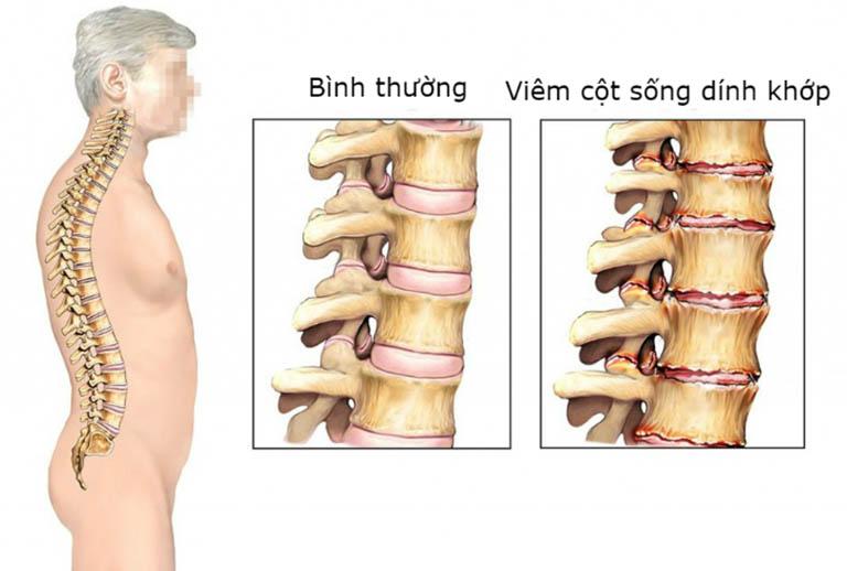 Viêm cột sống dính khớp: Nguyên nhân, Triệu chứng, cách điều trị