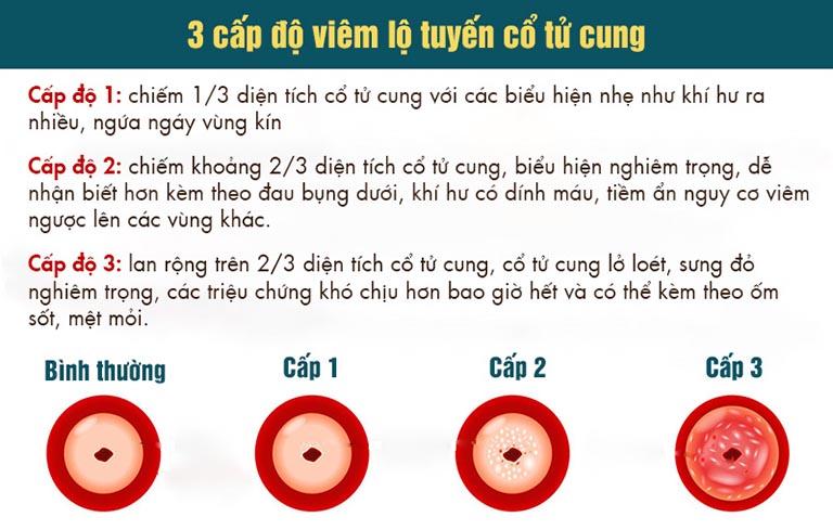 Các cấp độ của viêm lộ tuyến cổ tử cung