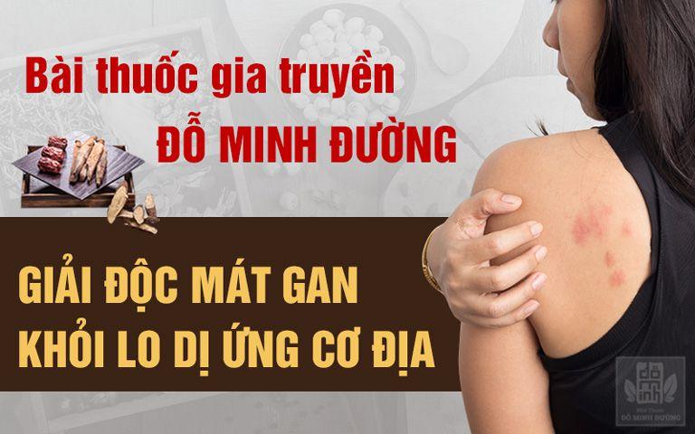 Bài thuốc chữa dị ứng cơ địa hiệu quả và an toàn của Đỗ Minh Đường