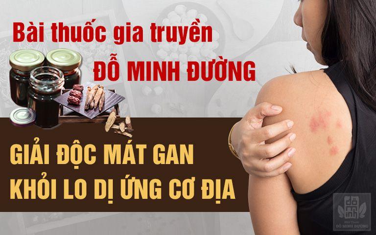 Bài thuốc chữa dị ứng cơ địa của Đỗ Minh Đường hiệu quả triệt để, không tái phát