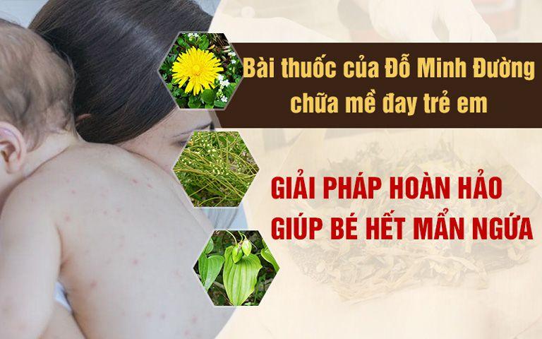 Bài thuốc gia truyền chữa nổi mề đay trẻ em của Đỗ Minh Đường là giải pháp hoàn hảo giúp bé hết mẩn ngứa