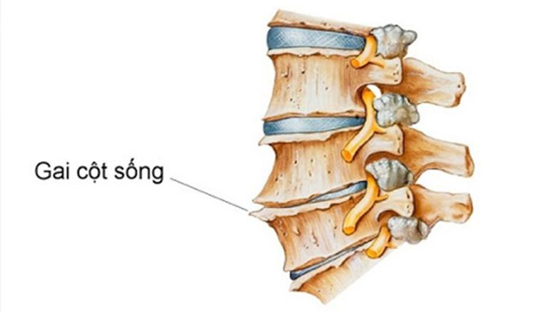 Gai cột sống hình thành nên các gai xương trên thân cột sống gây chèn ép lên thần kinh và tủy sống