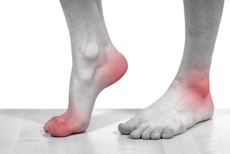 bệnh gout nguyên nhân
