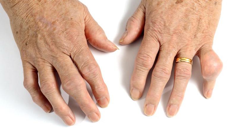bệnh gout điều trị