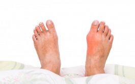 Bệnh gout cấp - Biểu hiện và cách giảm đau
