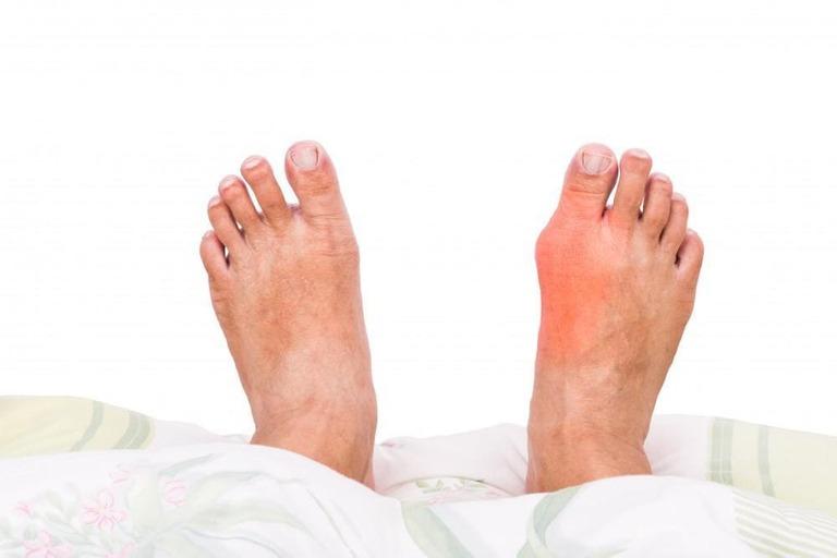 Biểu hiện bệnh gout cấp