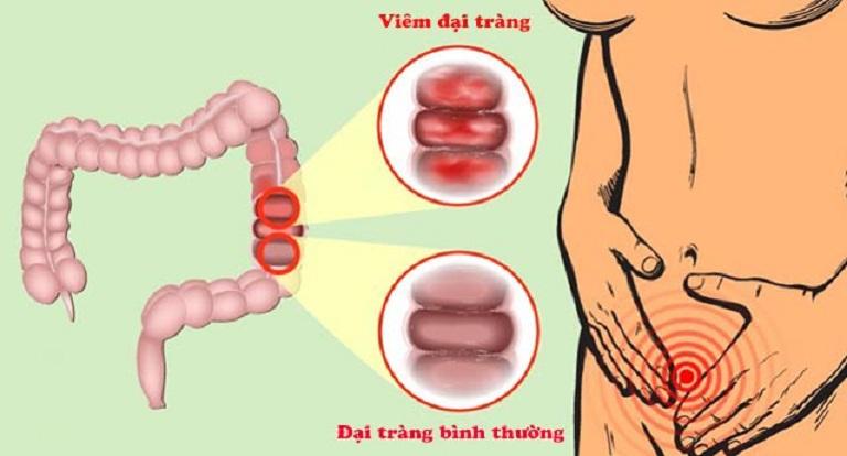 Viêm đại tràng là bệnh lý phổ biến ở đại tràng