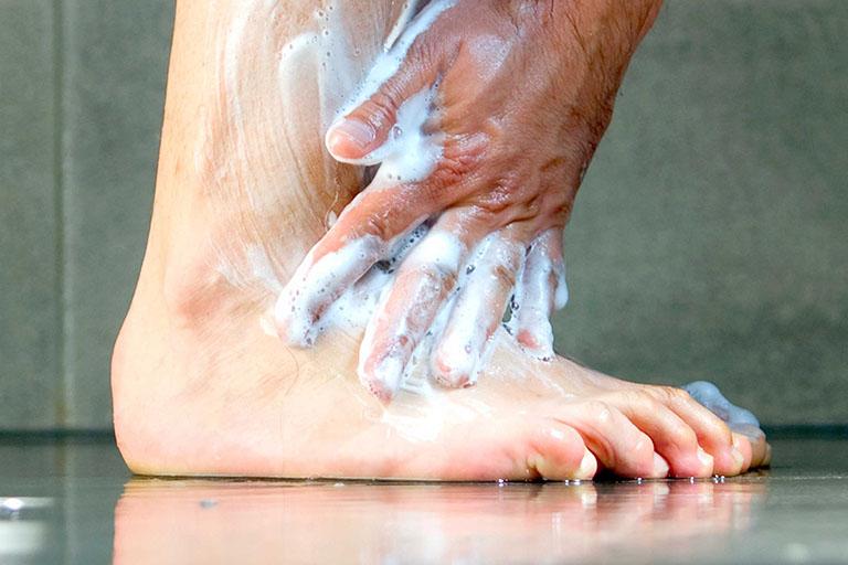 hình ảnh của bệnh nấm móng tay