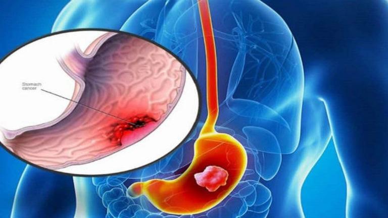 Bệnh viêm loét dạ dày có chữa được không?