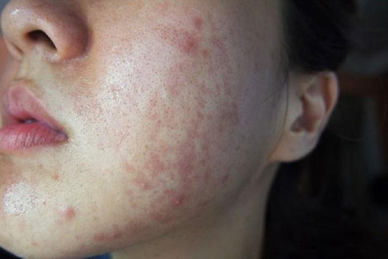 Dị ứng là căn bệnh phổ biến gây nổi mẩn đỏ và rất ngứa