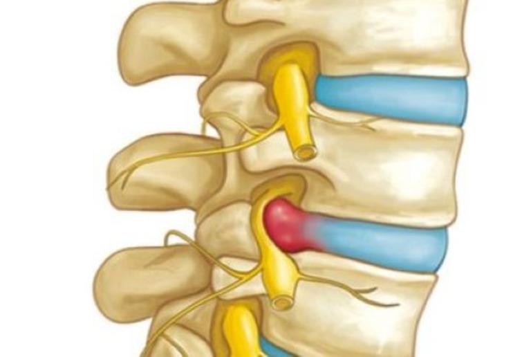 Thoát vị đĩa đệm là một trong những biến chứng có thể xảy ra bởi gai đôi cột sống S1.