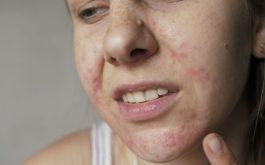 """Các cách chữa dị ứng da mặt nhanh nhất, """"hết sưng - ngứa - sẹo thâm"""""""