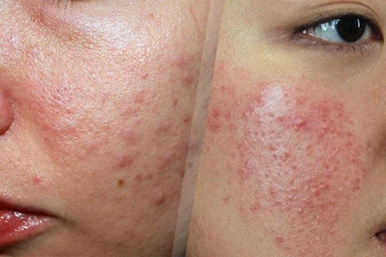 Dị ứng da mặt có ảnh hưởng trực tiếp tới sức khỏe và thẩm mỹ