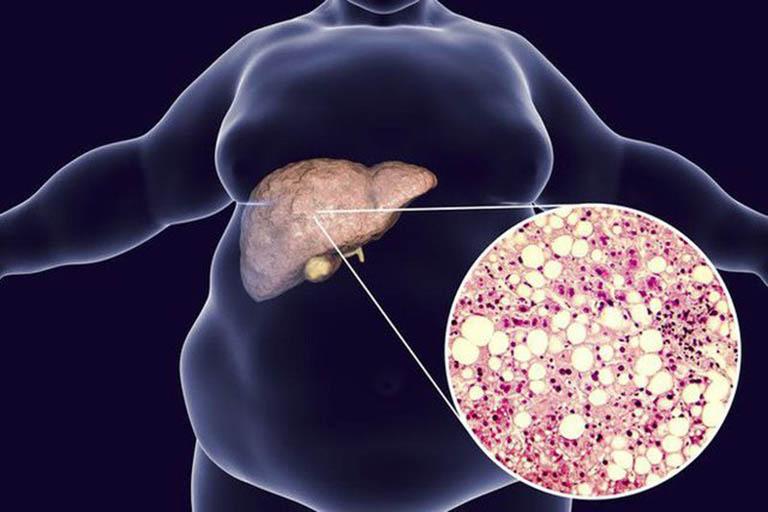 Bệnh gan nhiễm mỡ thường không gây ra nhiều triệu chứng cụ thể