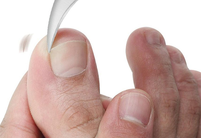cách trị nấm móng tay bằng tỏi