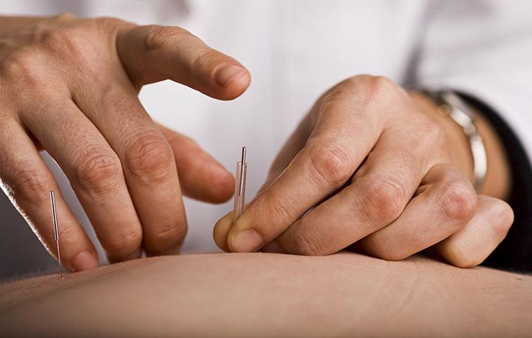Châm cứu là một phương pháp trị liệu cần kết hợp trong điều trị một số bệnh lý hậu sản