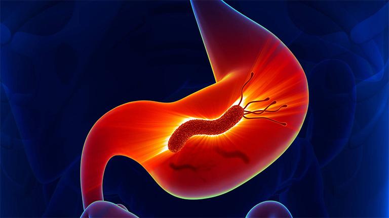 Nếu không tiến hành tiêu diệt vi khuẩn HP có trong dạ dày có thể gây ra những biến chứng nguy hiểm như: xuất huyết dạ dày, viêm loét dạ dày và thậm chí là ung thư dạ dày