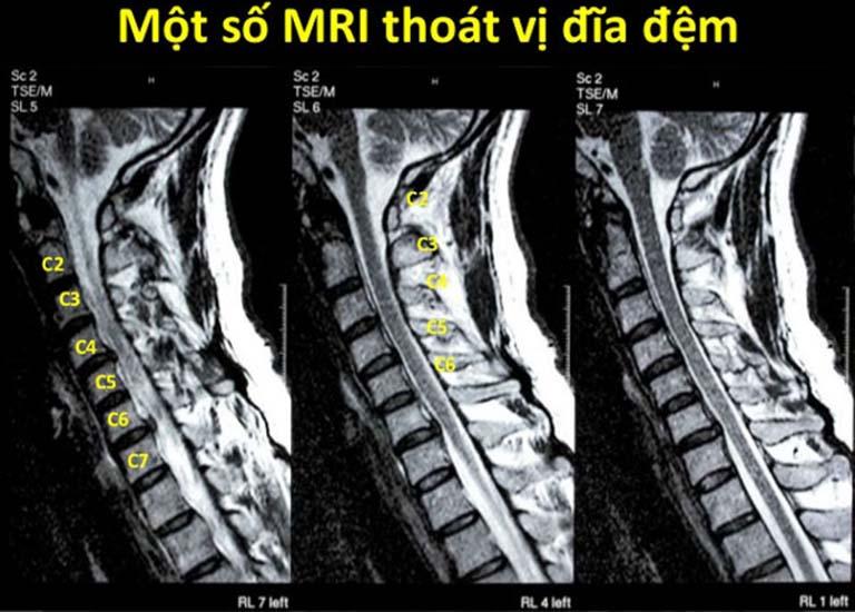 Chụp MRI thoát vị đĩa đệm là gì?