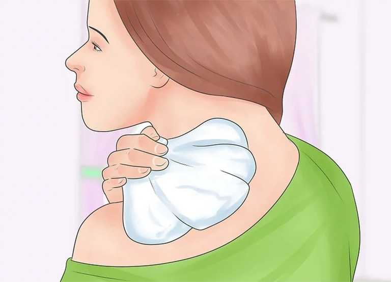 Chườm lạnh giúp làm dịu các cơn đau nhức vùng cổ, giảm sự chèn ép của các dây thần kinh, giúp cơ khớp được thư giãn