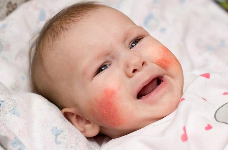 Trẻ em là đối tượng dễ bị nổi mề đay do cơ thể non nớt, sức đề kháng yếu