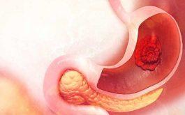 Viêm loét dạ dày gây ra những triệu chứng đau bụng, đi ngoài kèm đau đầu