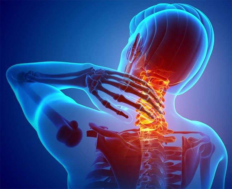 Hiện tượng đau xương cổ có thể là dấu hiệu của một bệnh lý xương khớp nguy hiểm