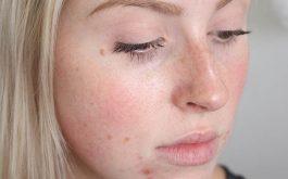 Dị ứng da mặt mẩn đỏ ngứa là gì và cách chữa hiệu quả cao