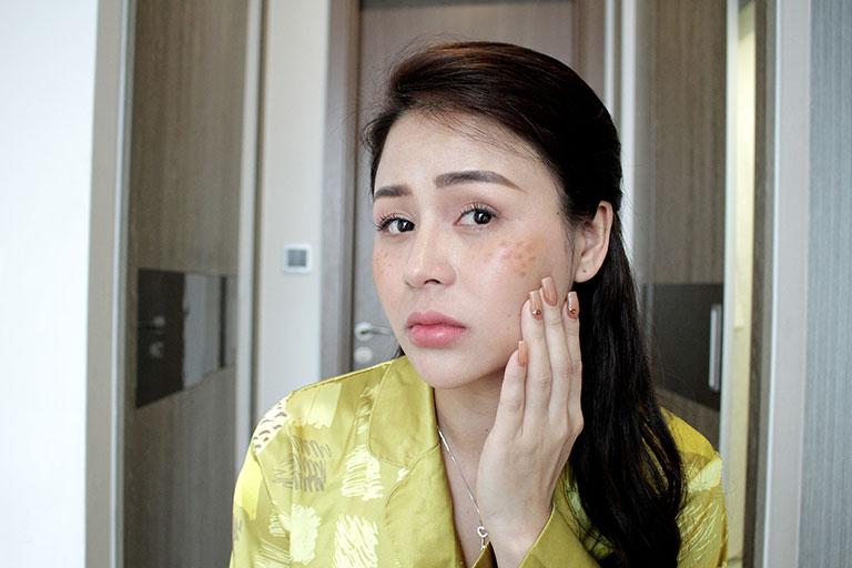 Lương Thu Trang từng gặp không ít khó khăn với làn da da chồng chéo các vết nám, tàn nhang