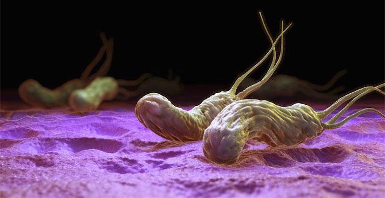 điều trị nhiễm khuẩn HP như thế nào