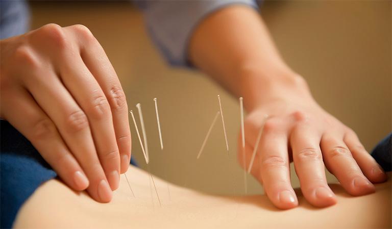 Châm cứu là liệu pháp giúp giảm đau nhức cột sống, giảm sự chèn ép của các dây thần kinh
