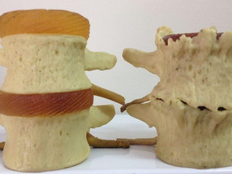 Gai đôi cột sống là bệnh hiếm gặp và chưa có thuốc trị khỏi hoàn toàn.