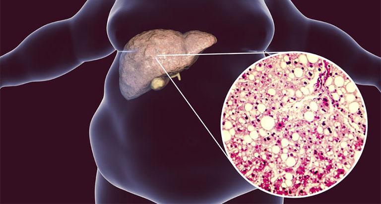 Gan nhiễm mỡ gây men gan giảm